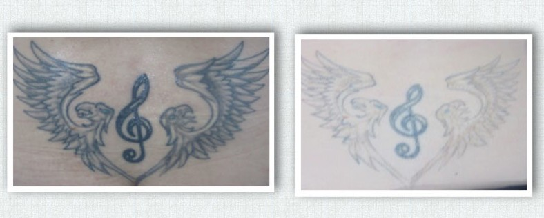 Laser Tattoo Removal after 2 sessions