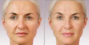 juvederm-before-after-dermal-fillers