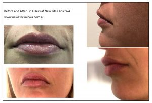 Cosmetic lip fillers with Dr Sanjay Nadkarni
